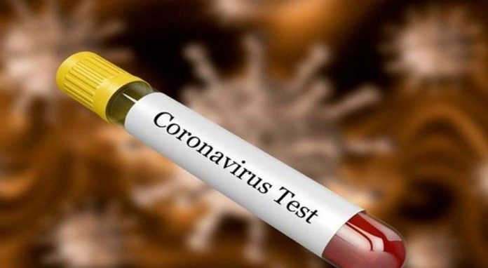 Khyber Pakhtunkhwa revises policy on testing for Covid-19
